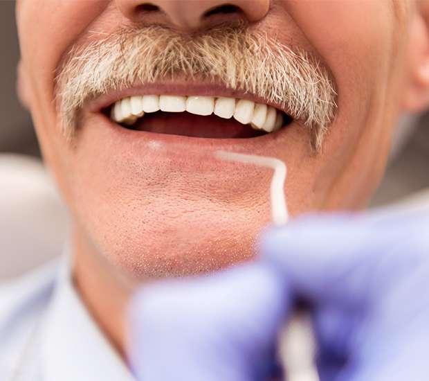 Jackson Adjusting to New Dentures