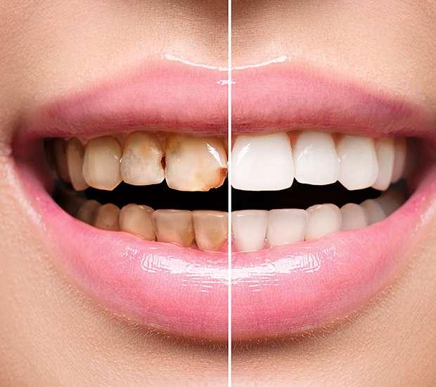 Jackson Dental Implant Restoration