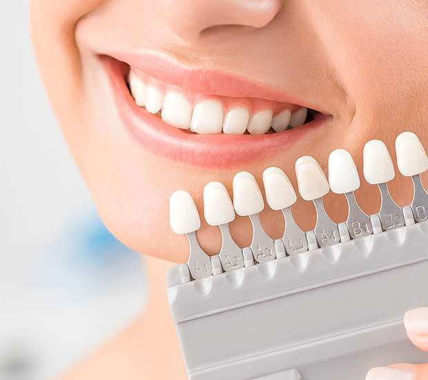 Jackson Dental Veneers and Dental Laminates