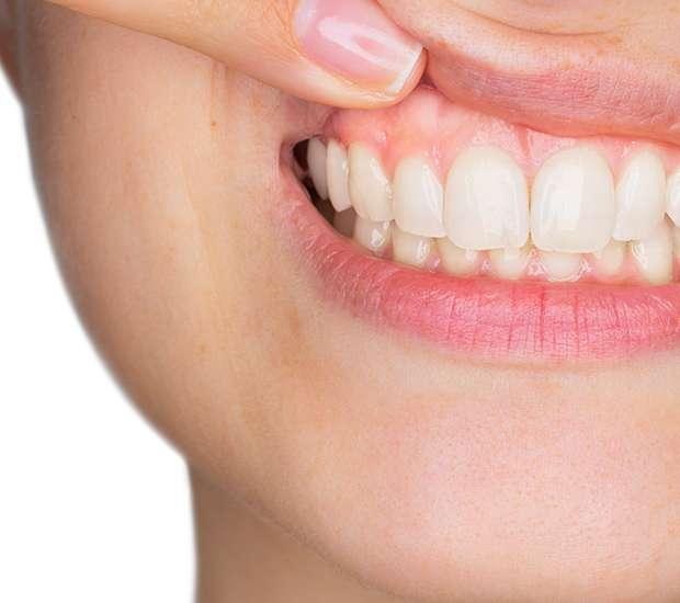 Jackson Gum Disease
